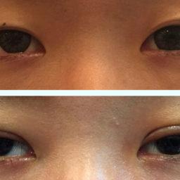 雙眼皮縫合