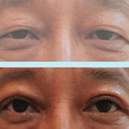 雙眼皮手術(割)