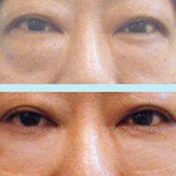 外開式眼袋手術