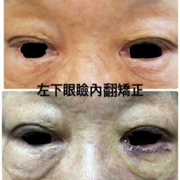 割左下眼瞼內翻手術