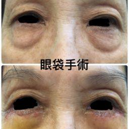 割雙眼眼袋手術