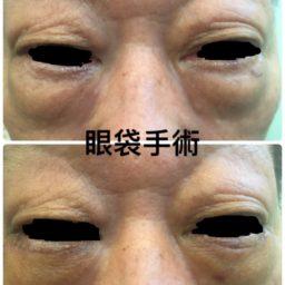 外開眼袋手術