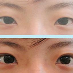 雙眼皮手術(縫)