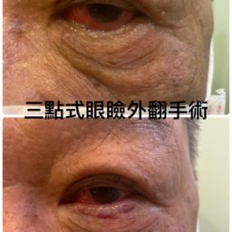 三點式眼瞼外翻手術